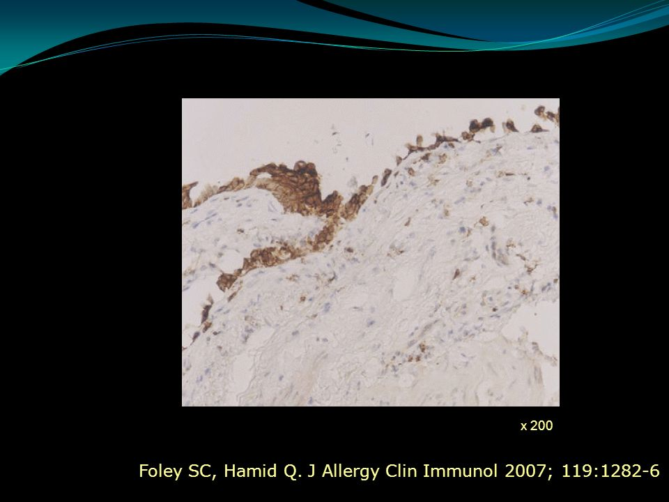 Foley SC, Hamid Q. J Allergy Clin Immunol 2007; 119:1282-6