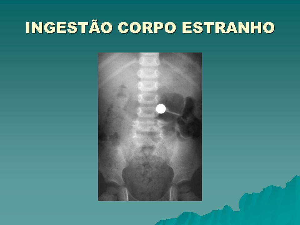 INGESTÃO CORPO ESTRANHO