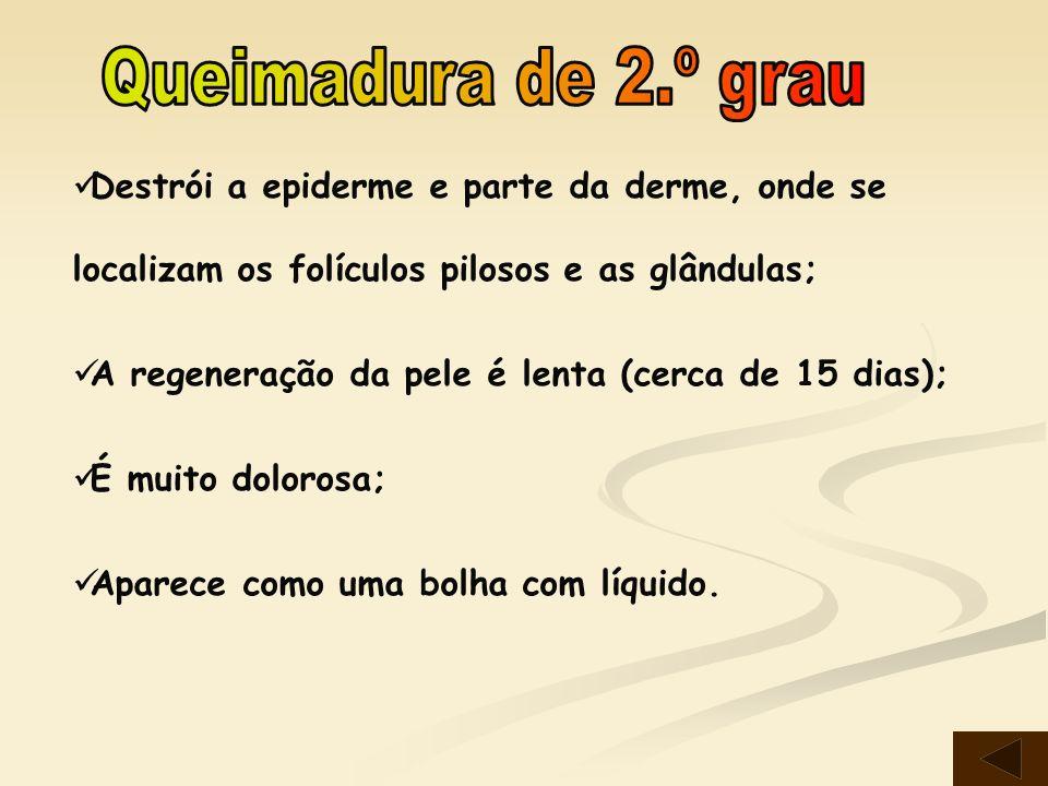 Queimadura de 2.º grau Destrói a epiderme e parte da derme, onde se localizam os folículos pilosos e as glândulas;