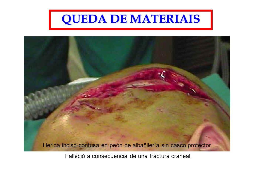 QUEDA DE MATERIAIS Herida inciso-contusa en peón de albañilería sin casco protector.