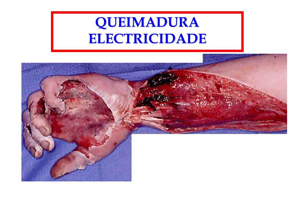 QUEIMADURA ELECTRICIDADE