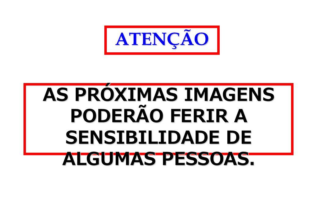 AS PRÓXIMAS IMAGENS PODERÃO FERIR A SENSIBILIDADE DE ALGUMAS PESSOAS.