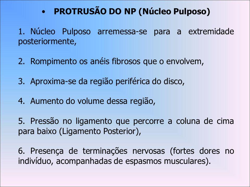 PROTRUSÃO DO NP (Núcleo Pulposo)