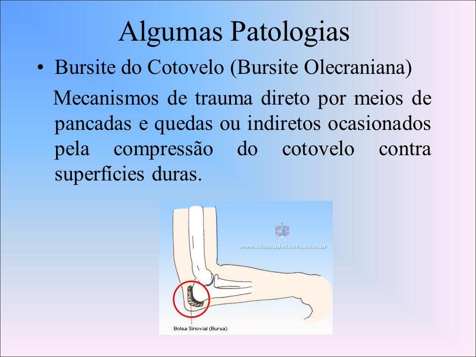 Algumas Patologias Bursite do Cotovelo (Bursite Olecraniana)