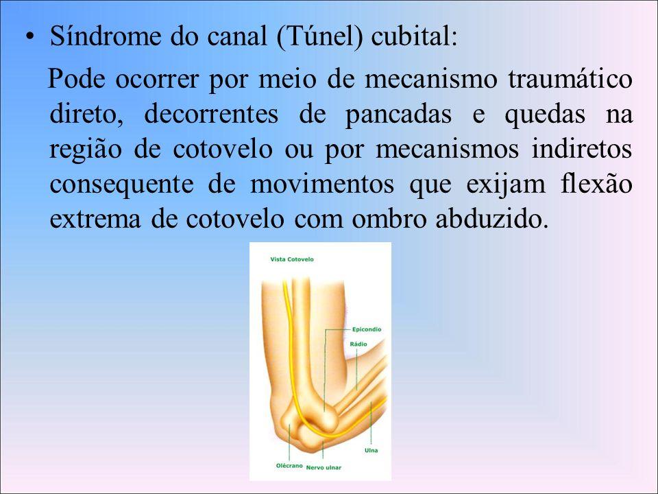 Síndrome do canal (Túnel) cubital: