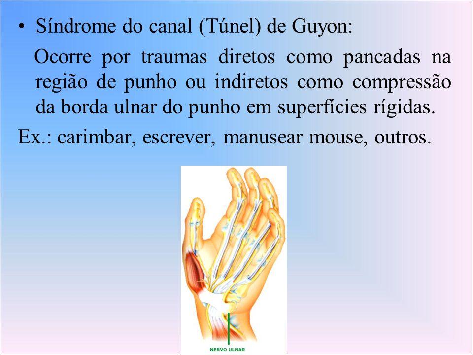 Síndrome do canal (Túnel) de Guyon: