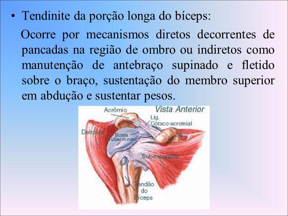 Tendinite da porção longa do bíceps: