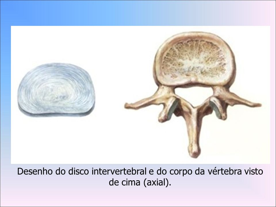 Desenho do disco intervertebral e do corpo da vértebra visto de cima (axial).