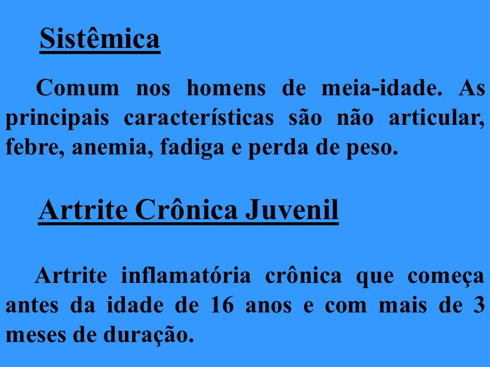 Artrite Crônica Juvenil