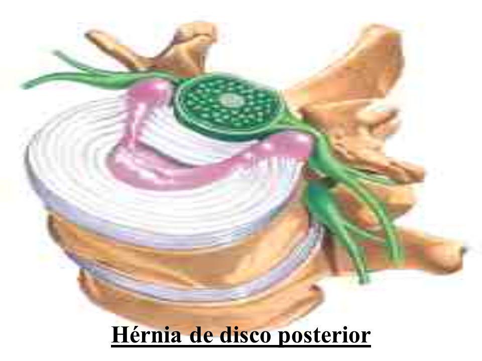 Hérnia de disco posterior