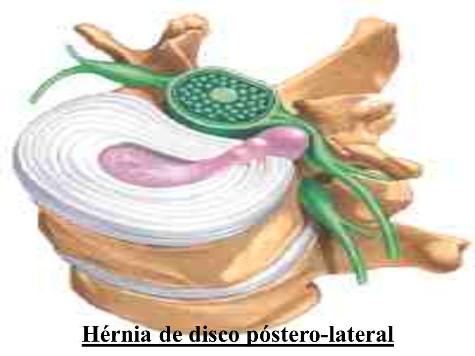 Hérnia de disco póstero-lateral