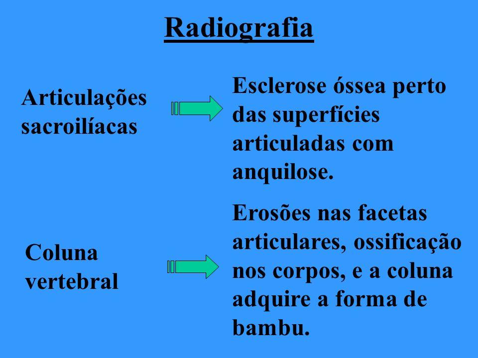 Radiografia Esclerose óssea perto das superfícies articuladas com anquilose. Articulações sacroilíacas.