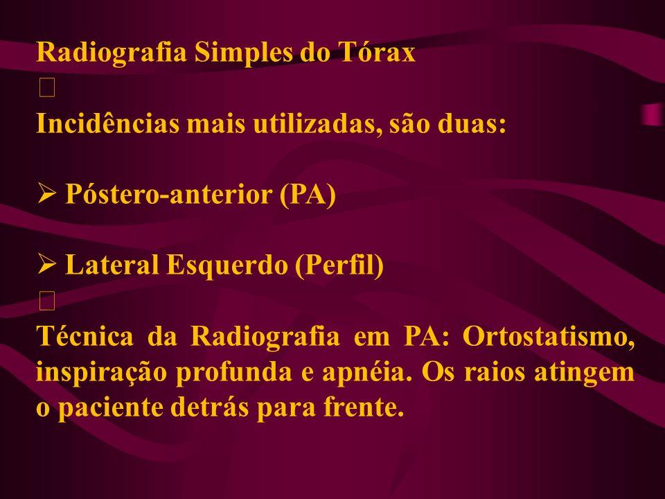 Radiografia Simples do Tórax