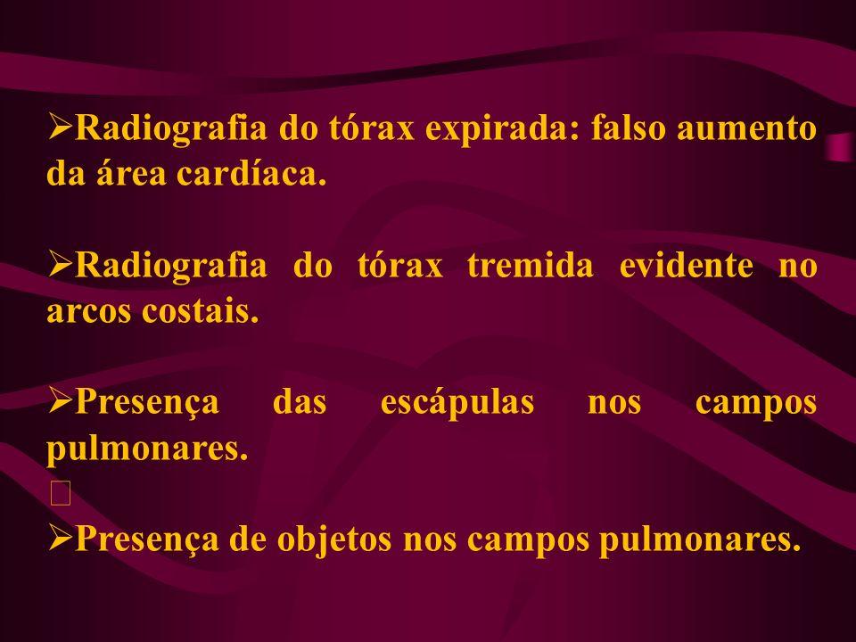 Radiografia do tórax expirada: falso aumento da área cardíaca.