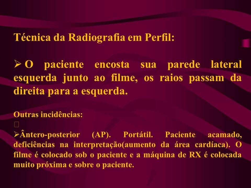 Técnica da Radiografia em Perfil:
