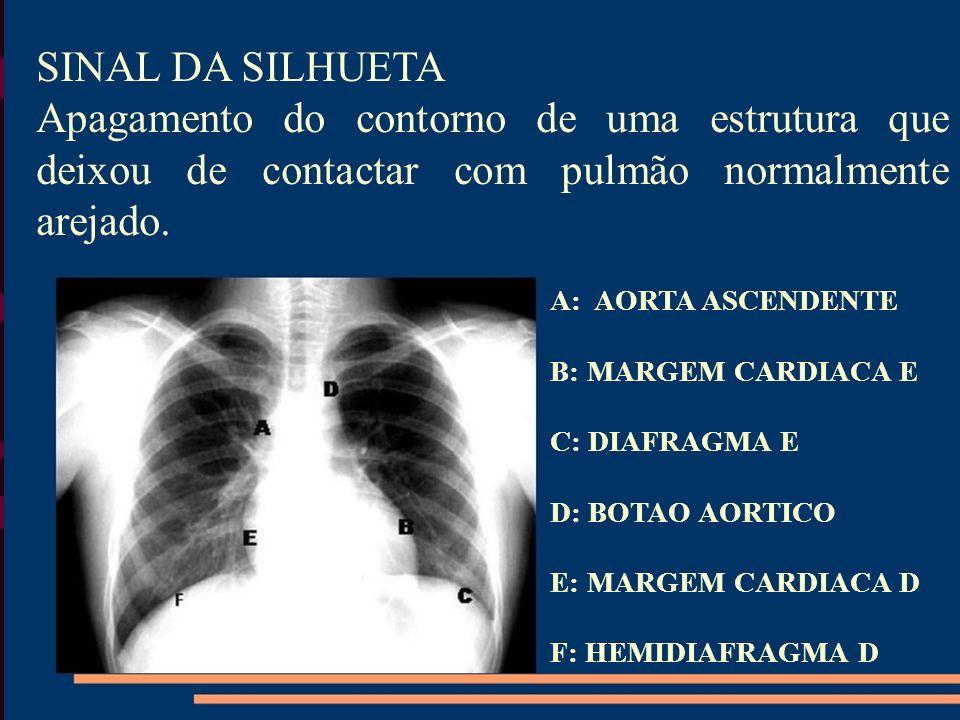 SINAL DA SILHUETAApagamento do contorno de uma estrutura que deixou de contactar com pulmão normalmente arejado.