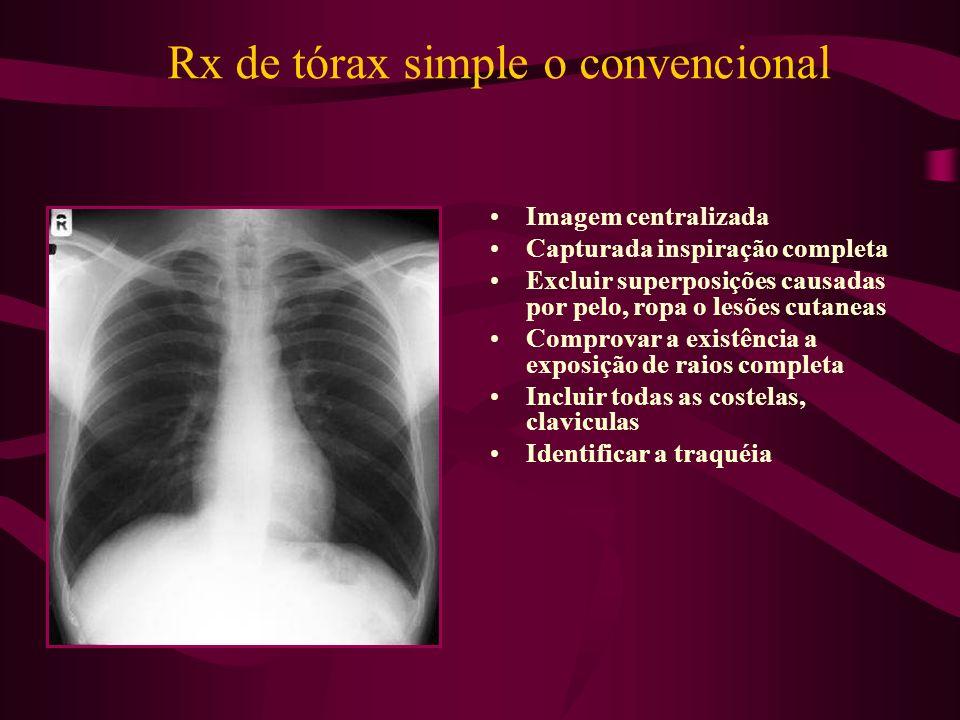 Rx de tórax simple o convencional