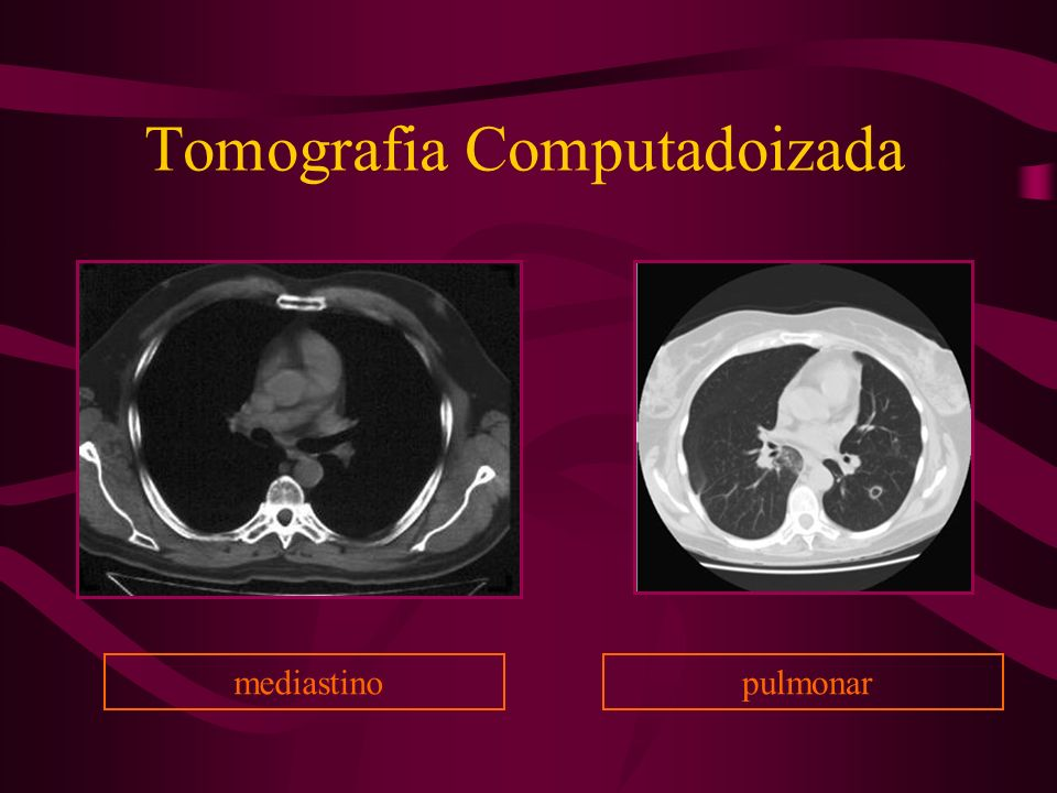 Tomografia Computadoizada