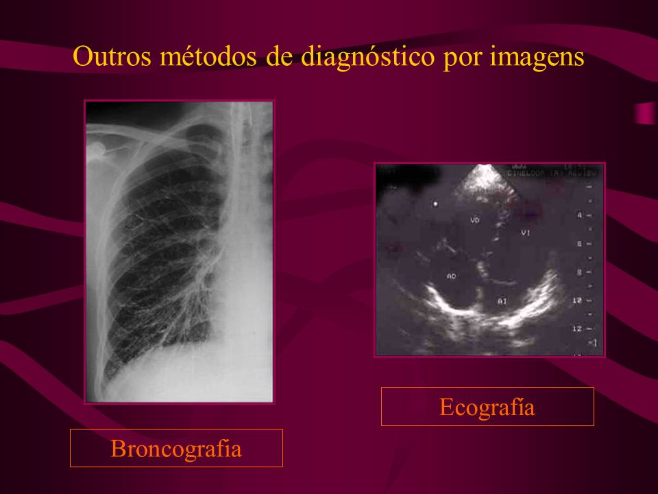 Outros métodos de diagnóstico por imagens