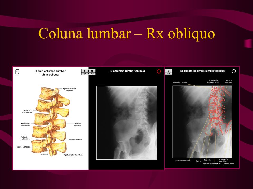 Coluna lumbar – Rx obliquo