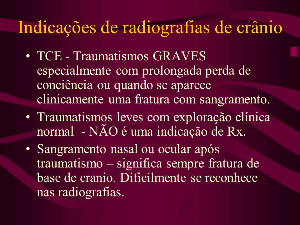 Indicações de radiografias de crânio