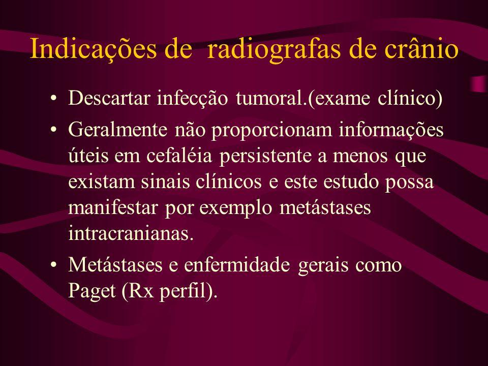 Indicações de radiografas de crânio