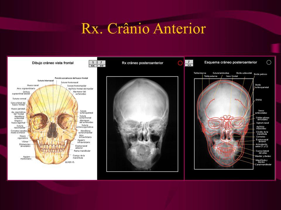 Rx. Crânio Anterior