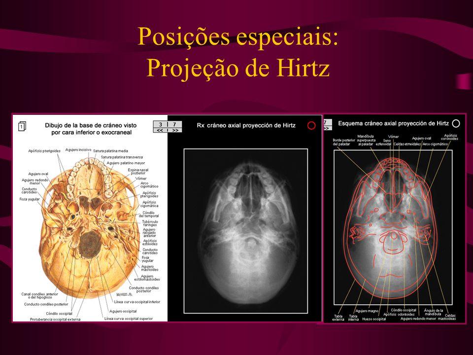 Posições especiais: Projeção de Hirtz