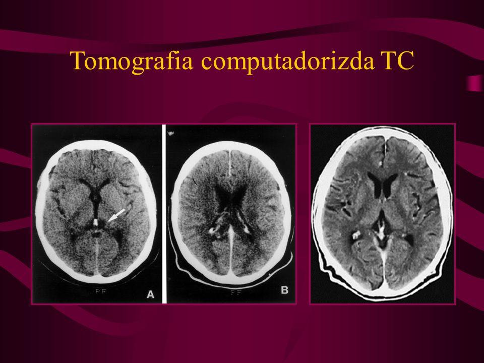 Tomografia computadorizda TC