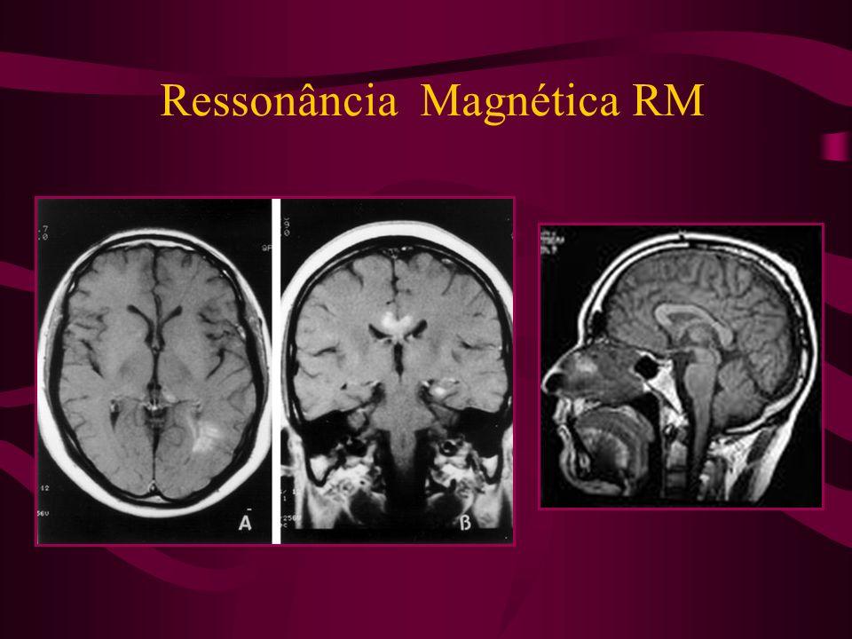 Ressonância Magnética RM