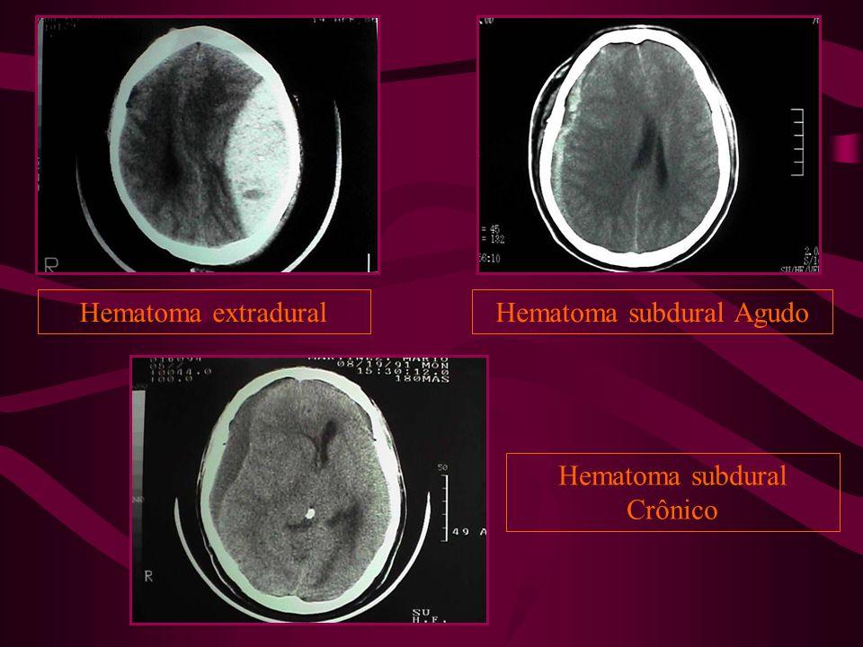 Hematoma subdural Agudo