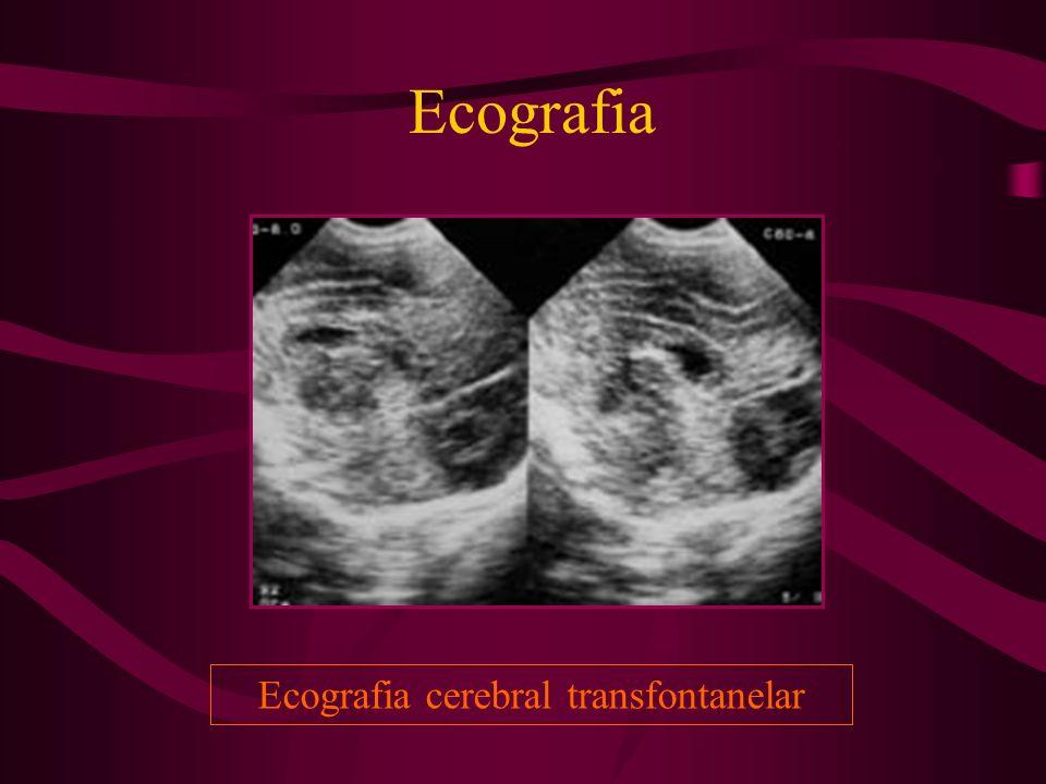 Ecografia cerebral transfontanelar