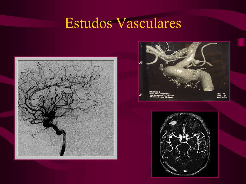 Estudos Vasculares