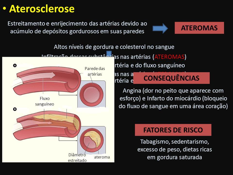 Aterosclerose ATEROMAS CONSEQUÊNCIAS FATORES DE RISCO