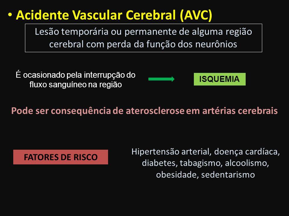 Pode ser consequência de aterosclerose em artérias cerebrais
