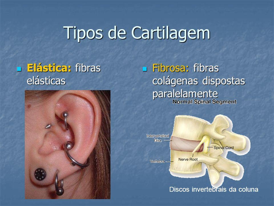 Tipos de Cartilagem Elástica: fibras elásticas