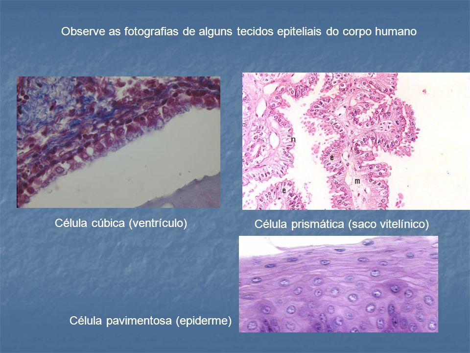 Observe as fotografias de alguns tecidos epiteliais do corpo humano
