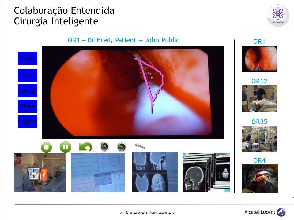 Colaboração Entendida Cirurgia Inteligente