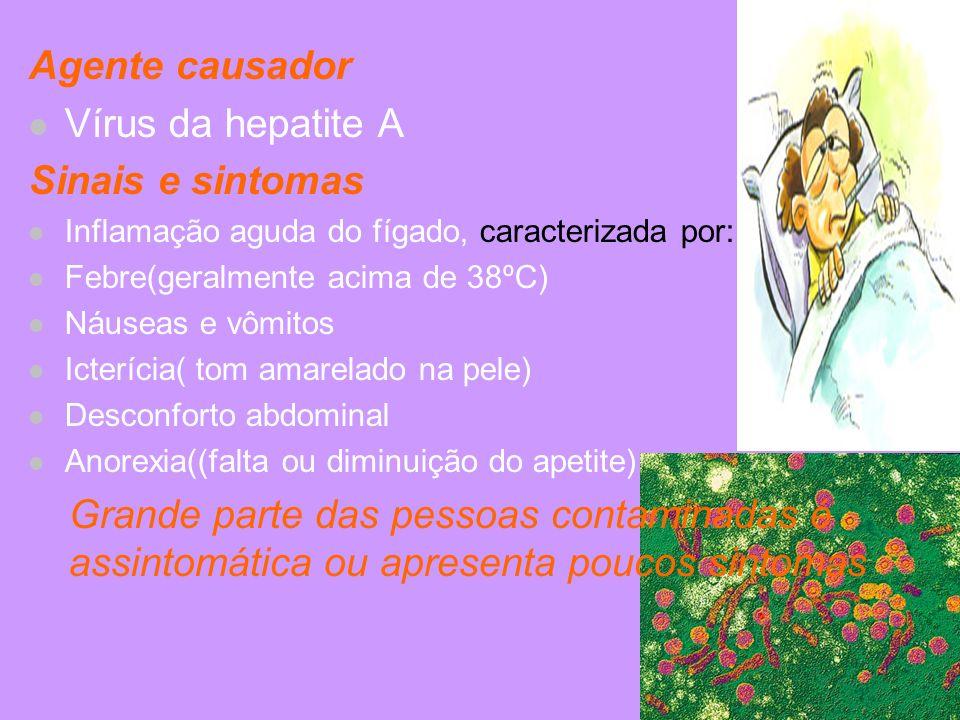 Agente causador Vírus da hepatite A Sinais e sintomas