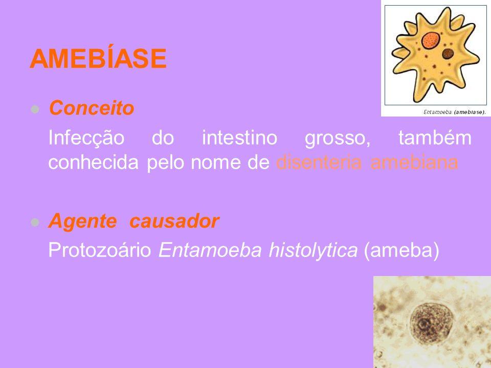 AMEBÍASE Conceito. Infecção do intestino grosso, também conhecida pelo nome de disenteria amebiana.