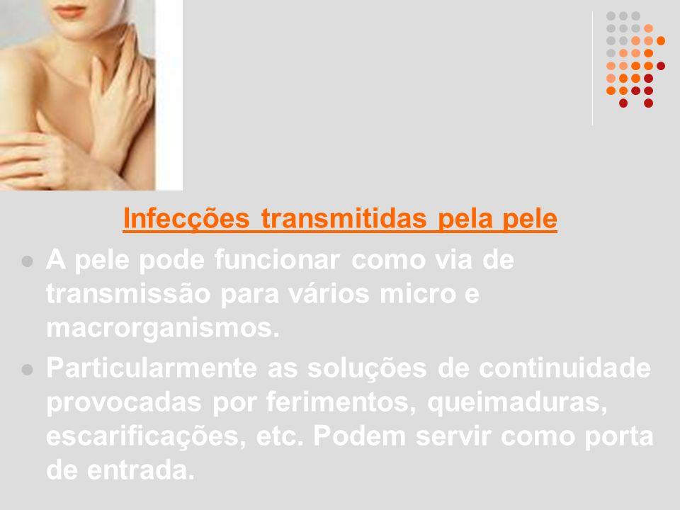 Infecções transmitidas pela pele
