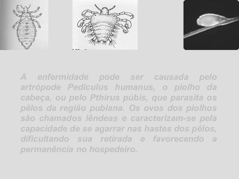 A enfermidade pode ser causada pelo artrópode Pediculus humanus, o piolho da cabeça, ou pelo Pthirus púbis, que parasita os pêlos da região pubiana.