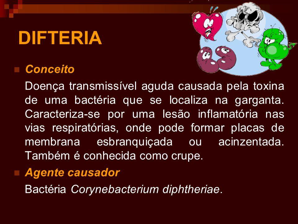 DIFTERIA Conceito.