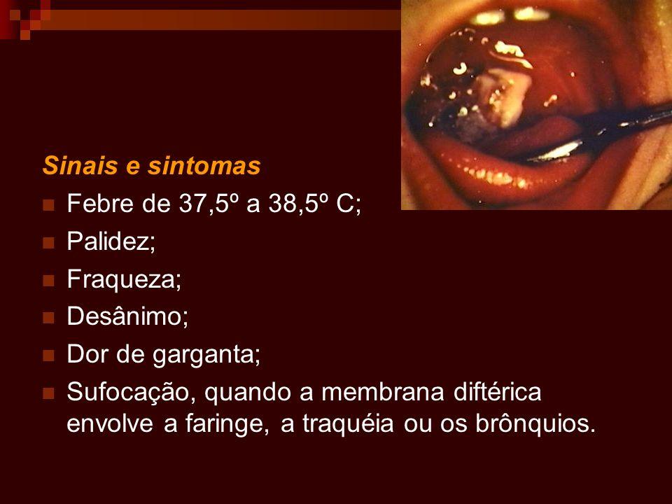 Sinais e sintomas Febre de 37,5º a 38,5º C; Palidez; Fraqueza; Desânimo; Dor de garganta;