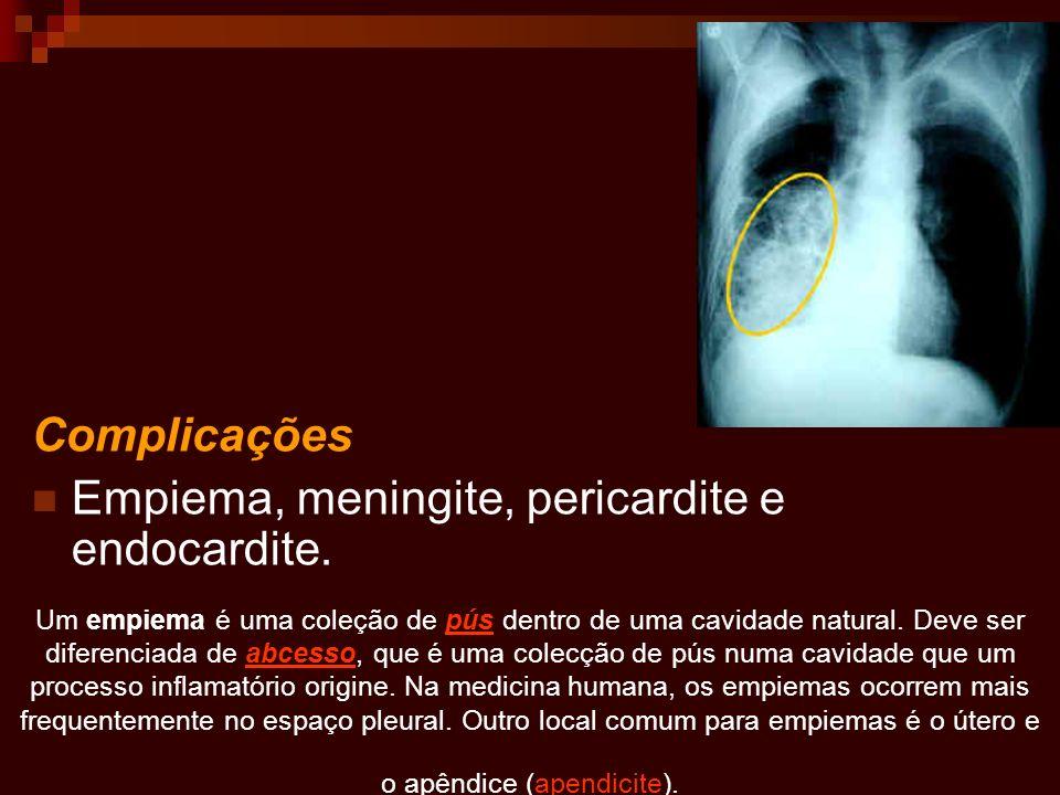Empiema, meningite, pericardite e endocardite.
