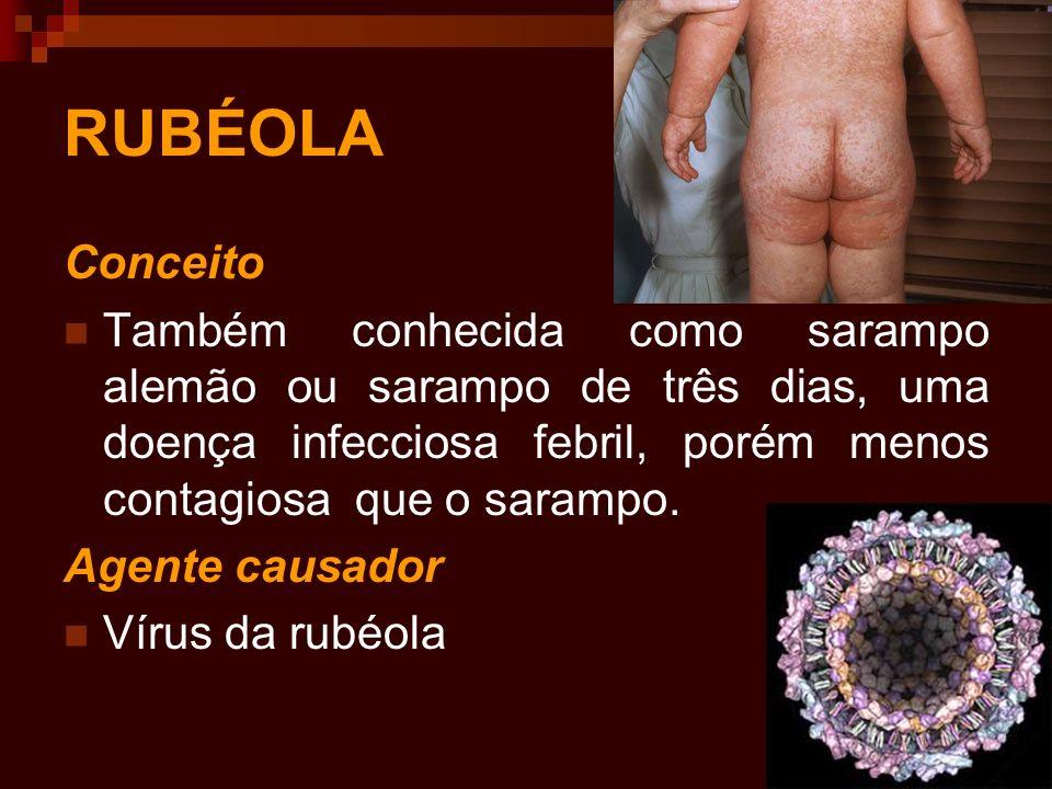 RUBÉOLA Conceito. Também conhecida como sarampo alemão ou sarampo de três dias, uma doença infecciosa febril, porém menos contagiosa que o sarampo.