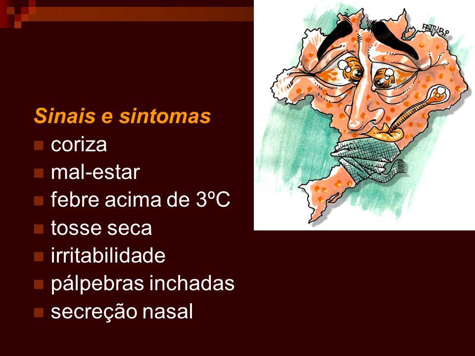Sinais e sintomas coriza. mal-estar. febre acima de 3ºC. tosse seca. irritabilidade. pálpebras inchadas.