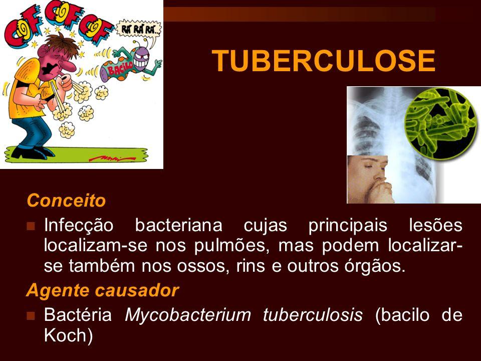 TUBERCULOSE Conceito.