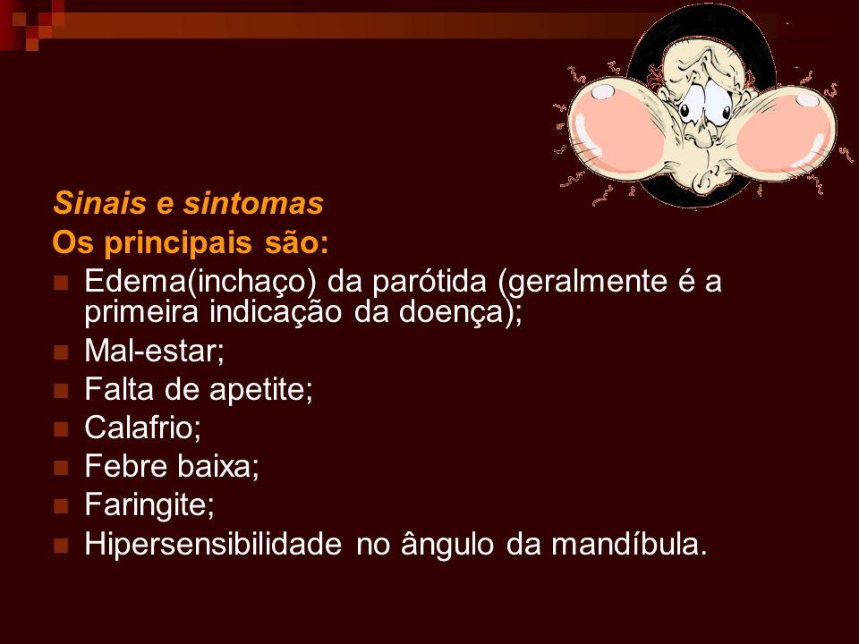Sinais e sintomas Os principais são: Edema(inchaço) da parótida (geralmente é a primeira indicação da doença);