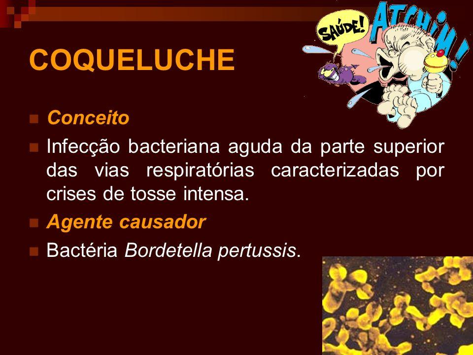 COQUELUCHE Conceito. Infecção bacteriana aguda da parte superior das vias respiratórias caracterizadas por crises de tosse intensa.